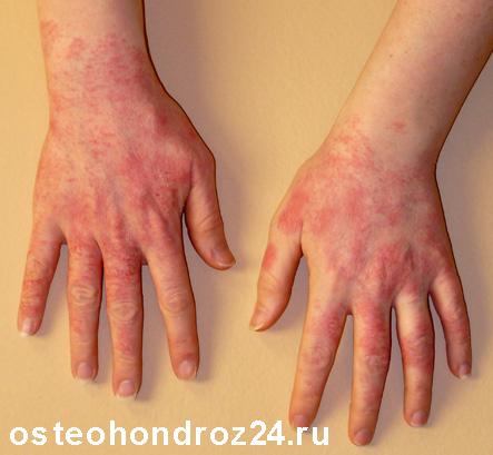 аллергия на левомеколь фото
