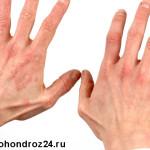 контактный дерматит фото
