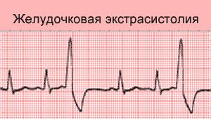 желудочковая экстрасистолия экг