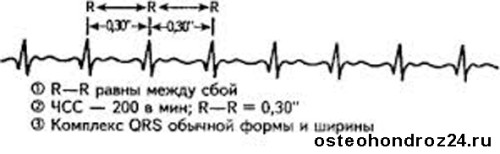 параксимальная тахикардия экг