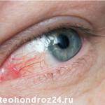 воспаление глаза фото